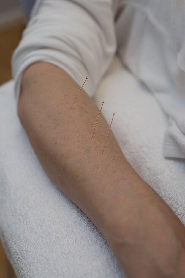 Proffsbehandling_akupunktur